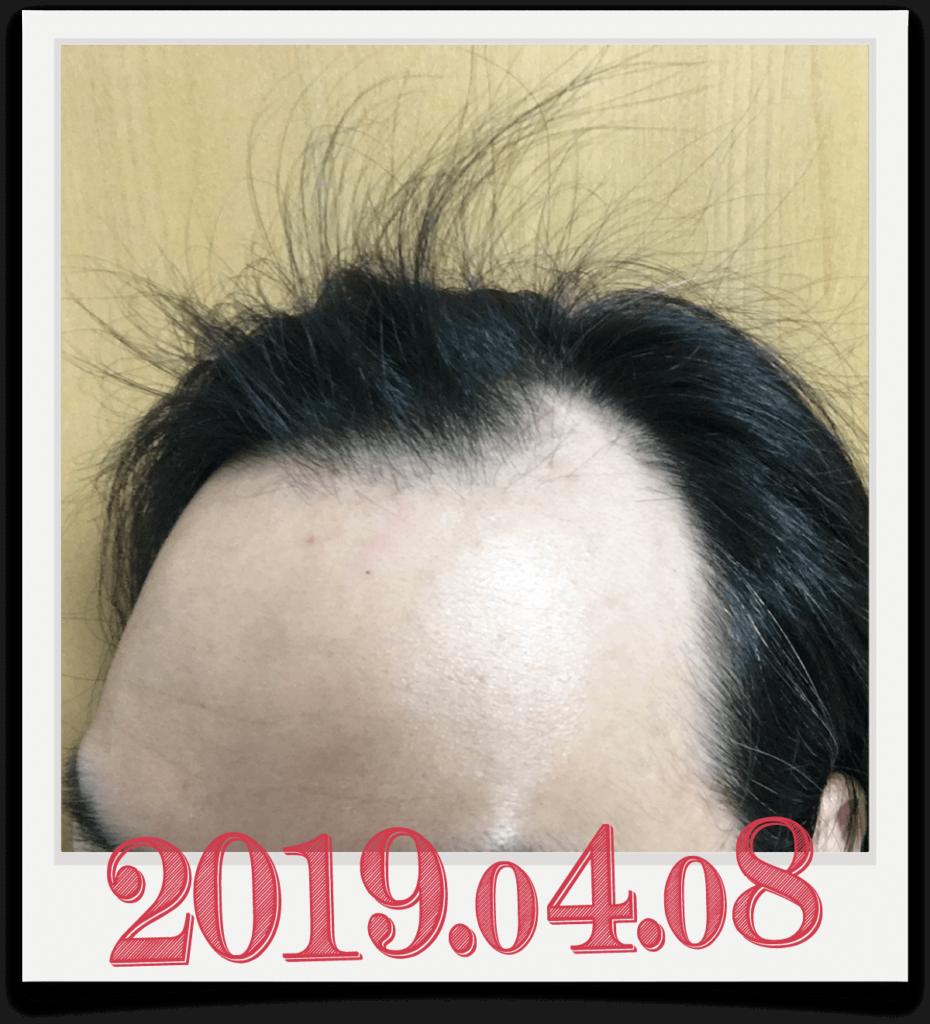 2019年4月8日に撮影した生え際画像(左)