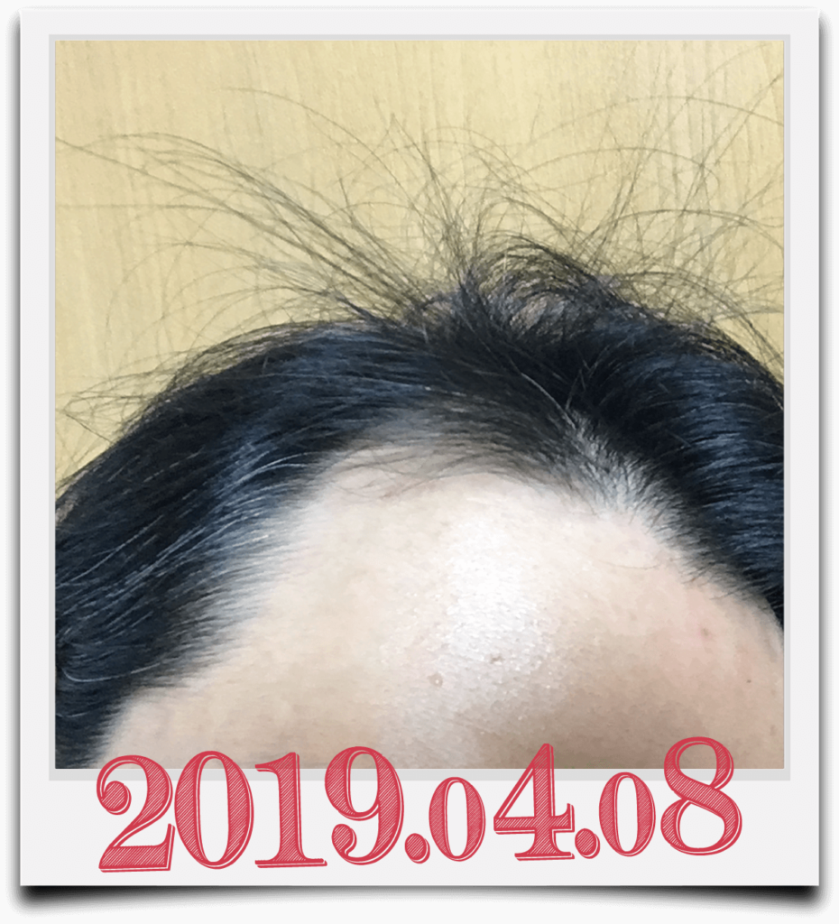 2019年4月8日に撮影した生え際画像(右)