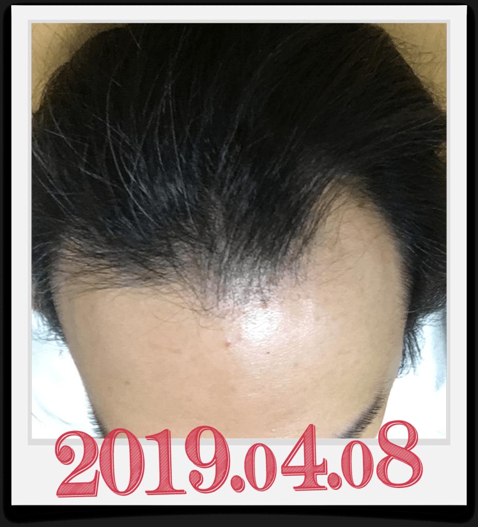 2019年4月8日に撮影した頭部画像