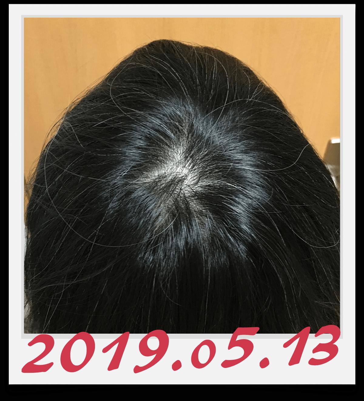 2019年5月13日に撮影した頭頂部