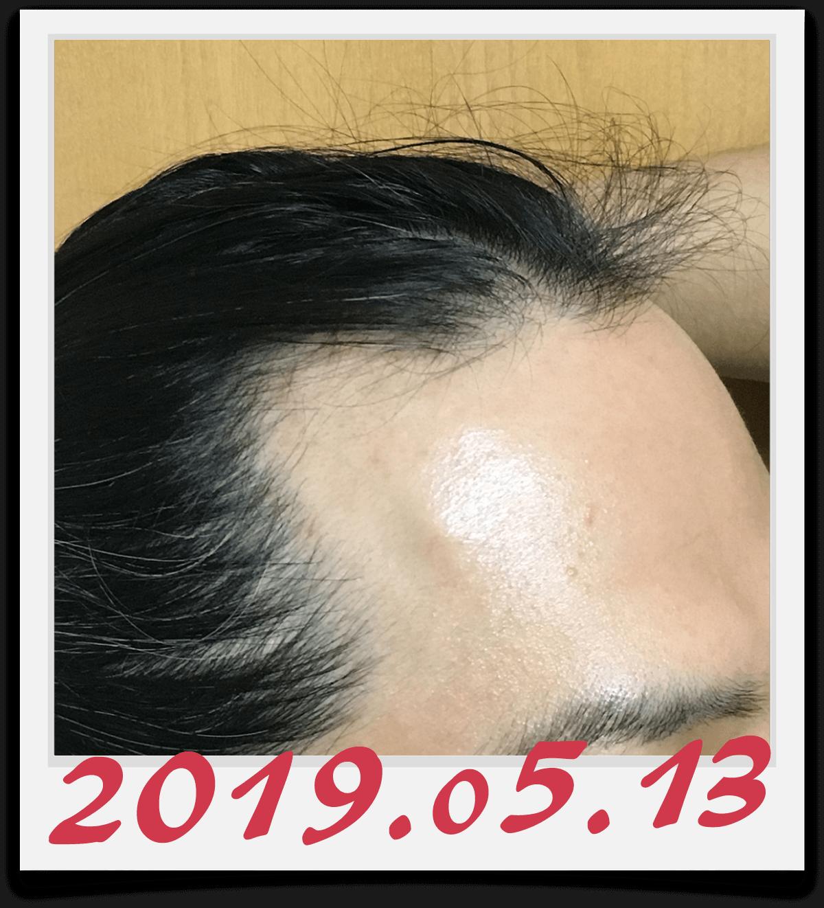 2019年5月13日に撮影した右側の生え際