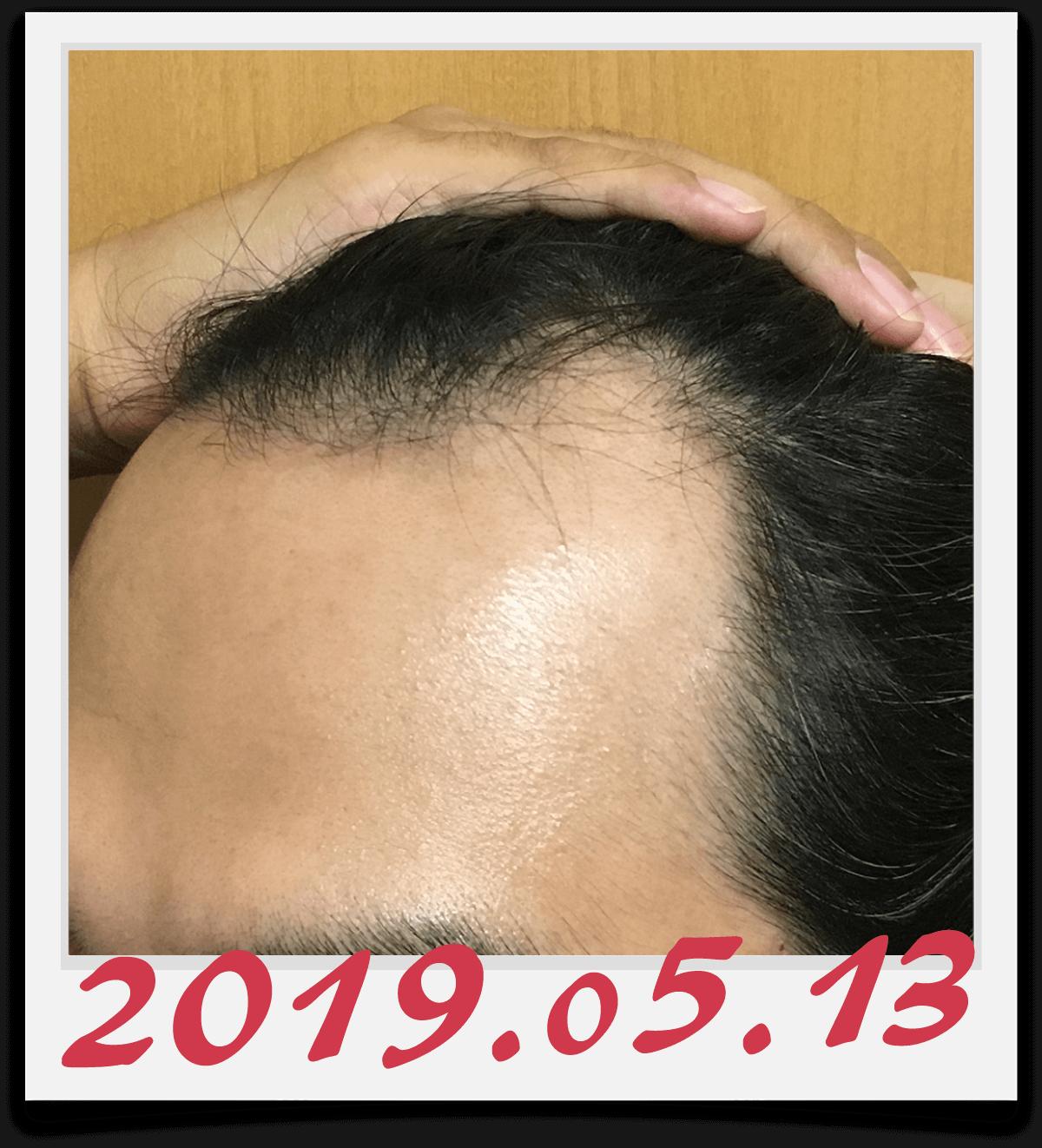 2019年5月13日に撮影した左側の生え際