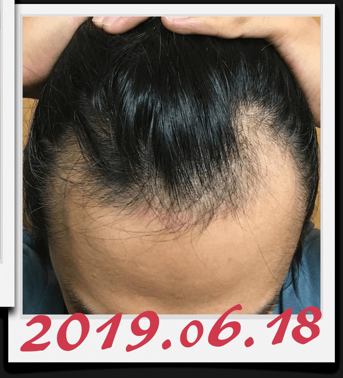 2019年6月18日に撮影した生え際