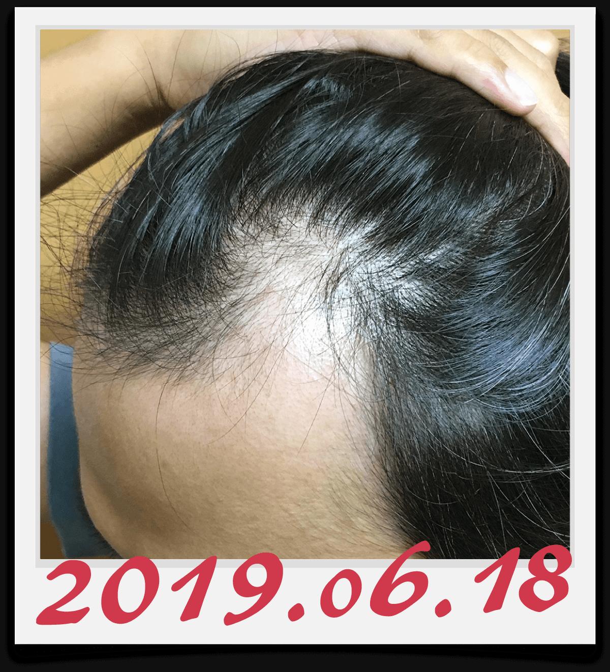 2019年6月18日に撮影した左側の生え際