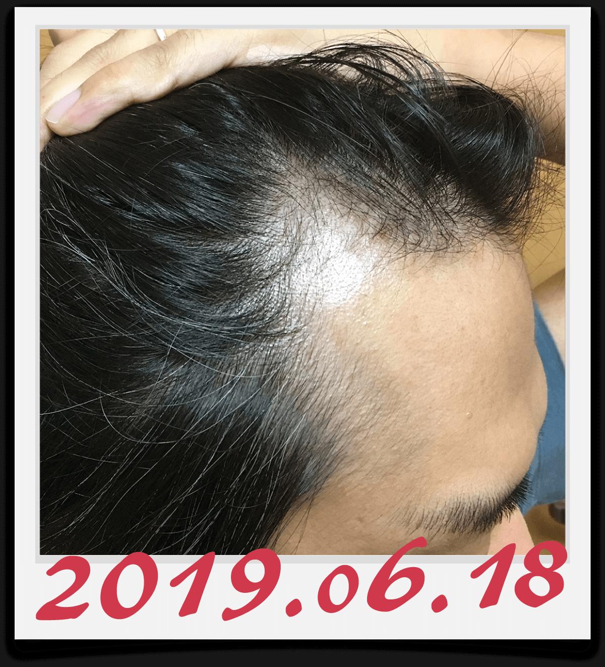2019年6月18日に撮影した右側の生え際