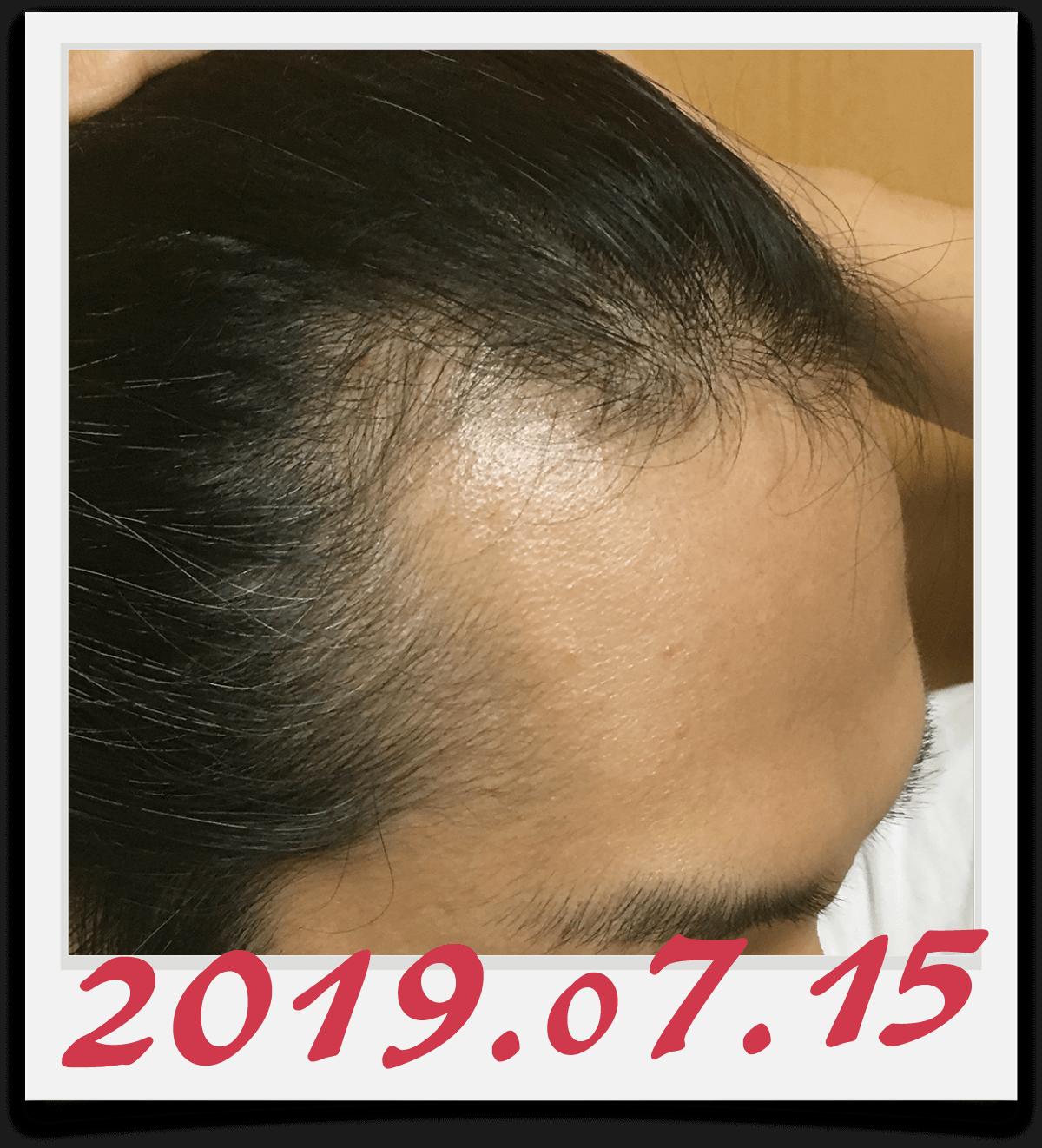 2019年7月15日に撮影した右側の生え際
