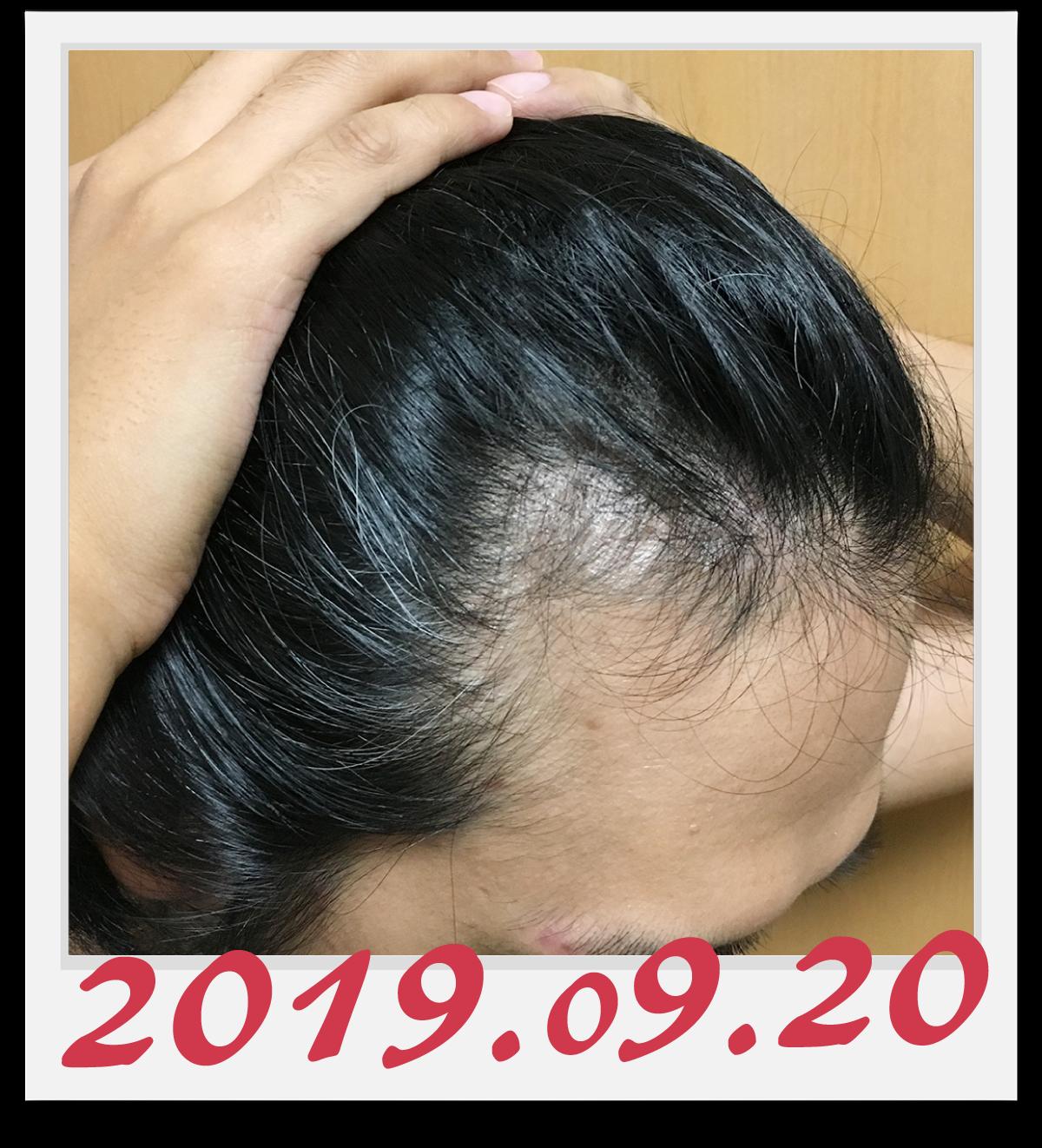 2019年9月20日に撮影した右側の生え際