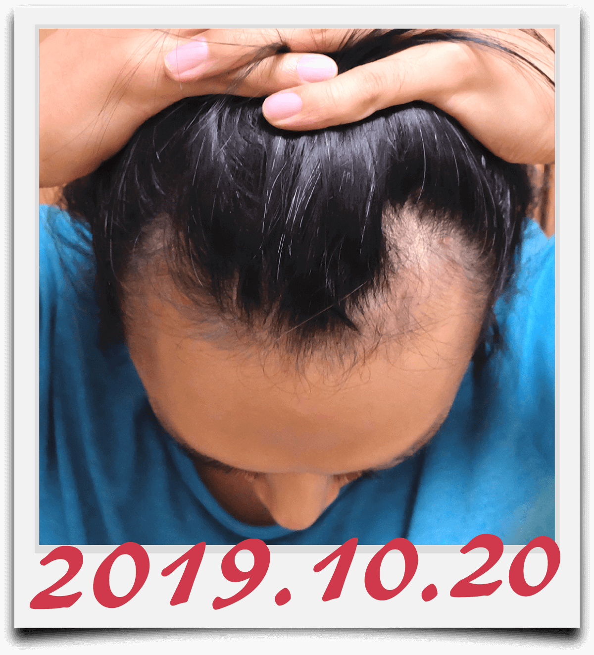 2019年10月20日に撮影した生え際