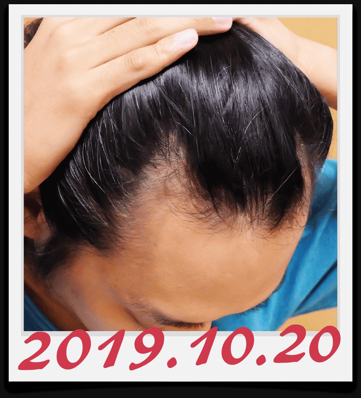2019年10月20日に撮影した右側の生え際