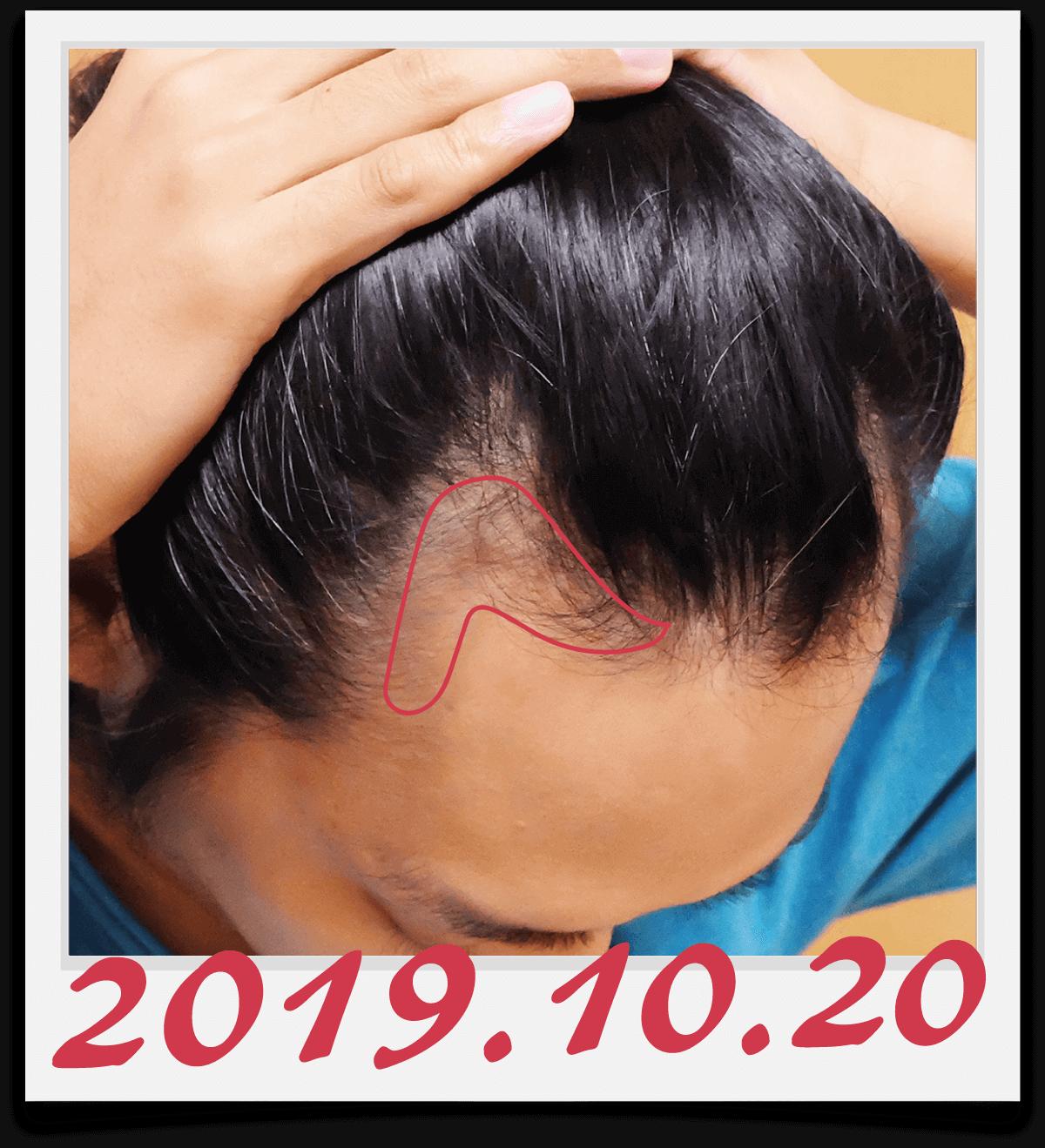 右側生え際の、半年で髪が生えてきた範囲