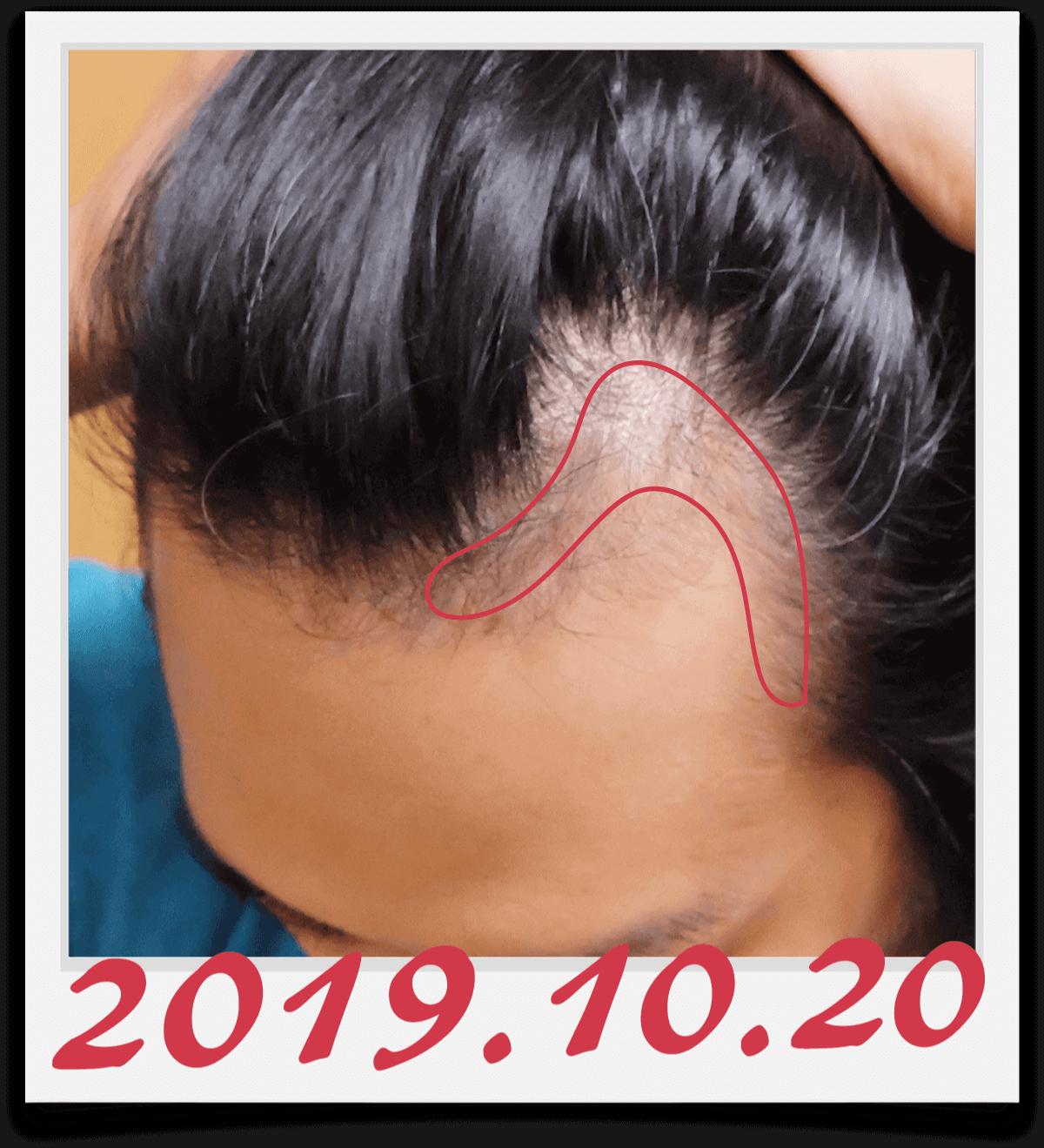 左側生え際の、半年で髪が生えてきた範囲