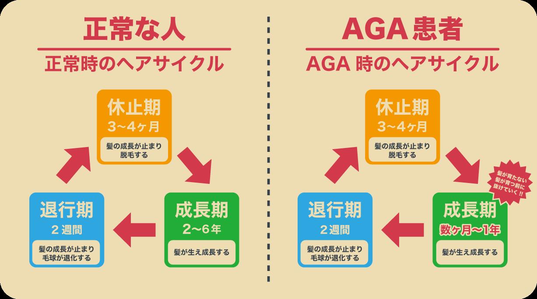 正常な人とAGA患者のヘアサイクルの違いを表した図