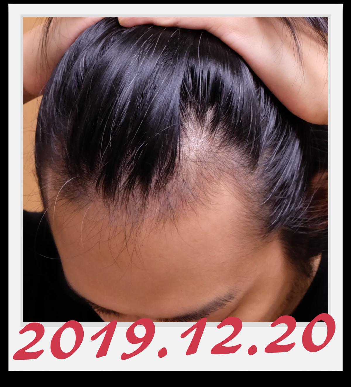 2019年12月20日に撮影した左側の生え際