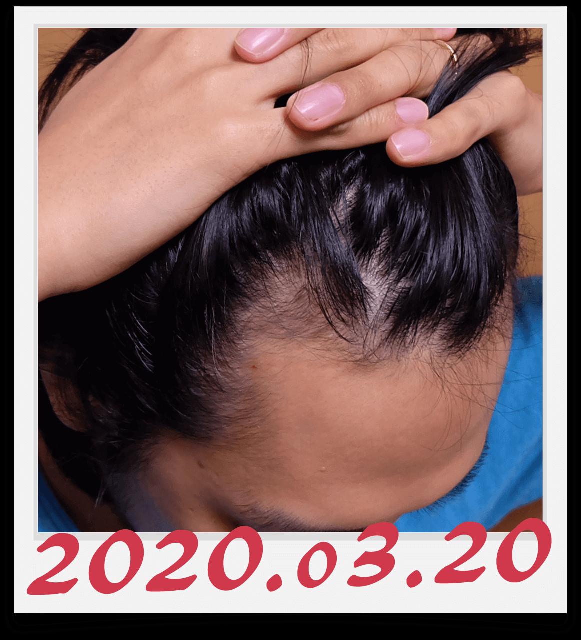 2020年3月20日に撮影した右側の生え際